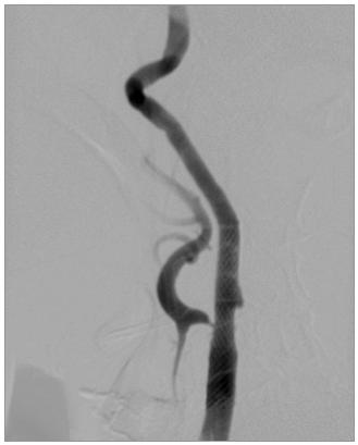 Obr. 2b. Stav po dilataci stenózy ACI a implantaci stentu.