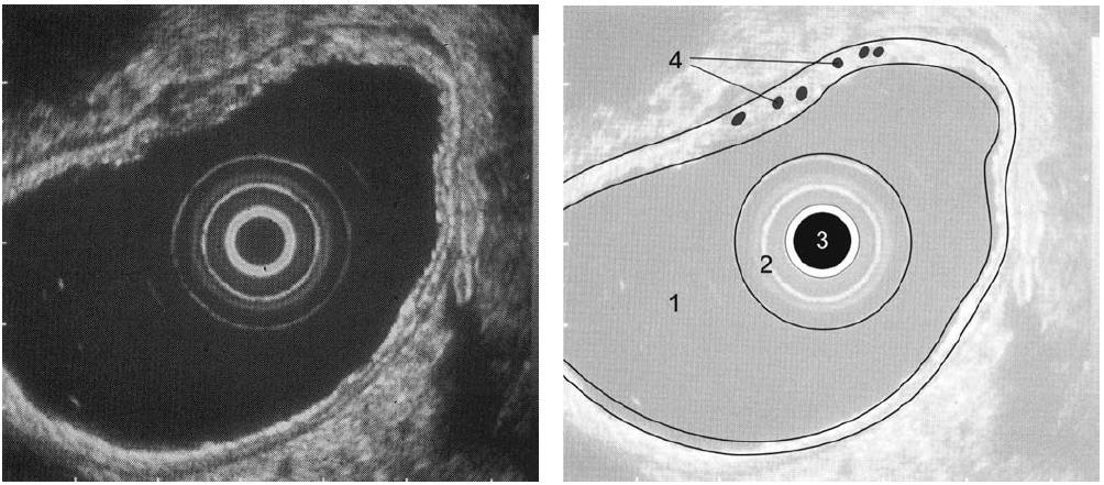 Obr. 1,2. EUS obraz žaludku: 1. lumen žaludku; 2. balonek endosonografu; 3. endosonografická sonda; 4. intramurální varixy.<br> Fig. 1,2. EUS image of the stomach: 1. stomach lumen; 2. endosonography balloon; 3. endosonographic probe; 4. intramural varices.