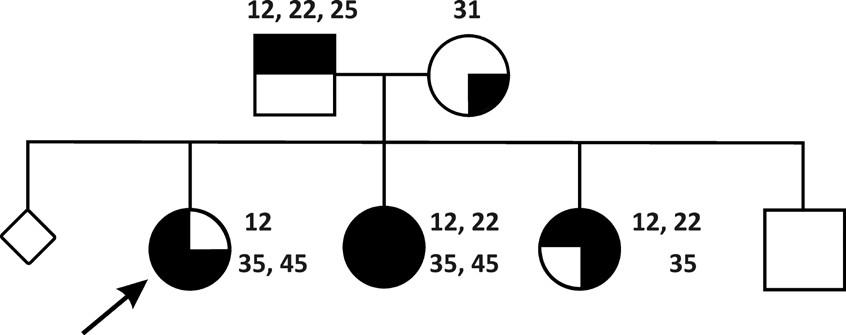 Rodina s oběma rodiči postiženými hypodoncií, matce chybí horní postranní řezáky (12 a 22) a levý horní druhý premolár (25), otci dolní levý střední řezák. U jejich dětí jsou různé kombinace nezaložených horních laterálních řezáků a druhých dolních premolárů