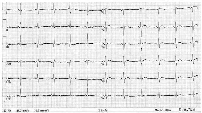 Elektrokardiogram nemocného s mitochondriální hypertrofickou kardiomyopatií demonstrující zkrácení PQ intervalu; voltážová kritéria hypertrofie levé komory nejsou vyjádřena.