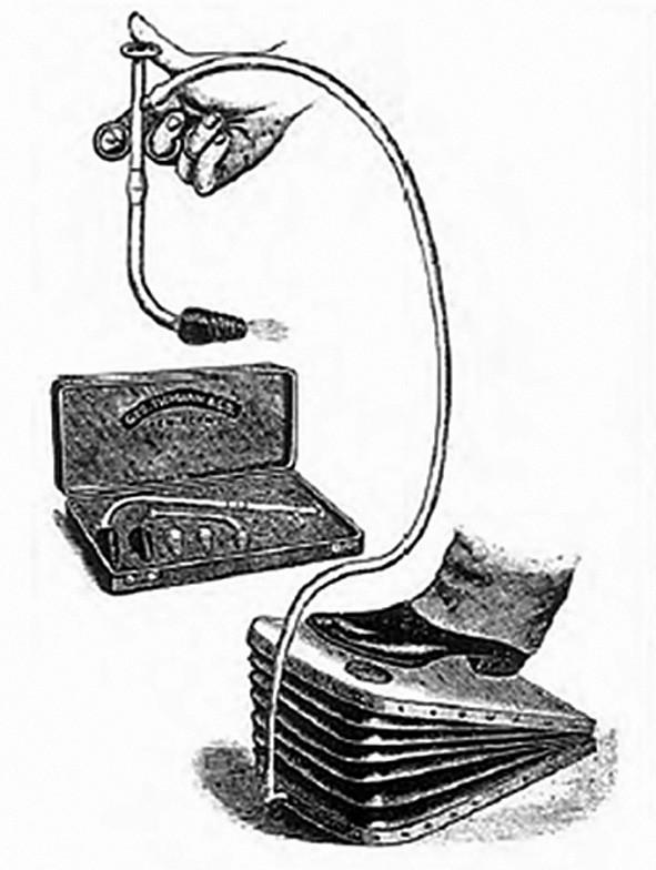 Fell-O'Dwyerův aparát Fig. 6: Fell-O'Dwyer apparatus