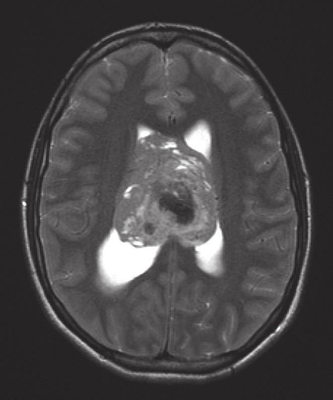 Nález na iniciální magnetické rezonanci mozku.