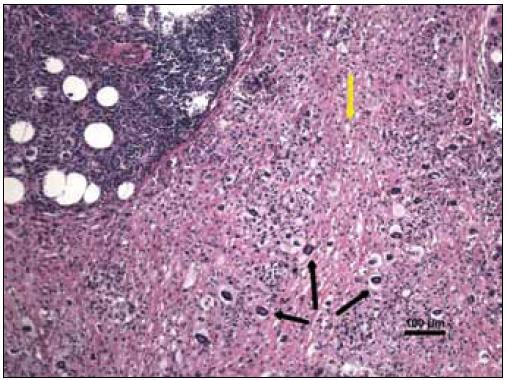 Barvení hematoxylin-eozin, původní zvětšení 100krát. Hustý buněčný zánětlivý infiltrát, v levém horním rohu mikrosnímku tvořený zejména malými lymfocyty. V ostatních partiích jsou velmi četné světlé pěnité histiocyty (žlutá šipka) a obrovské mnohojaderné buňky Toutonova typu (černé šipky).
