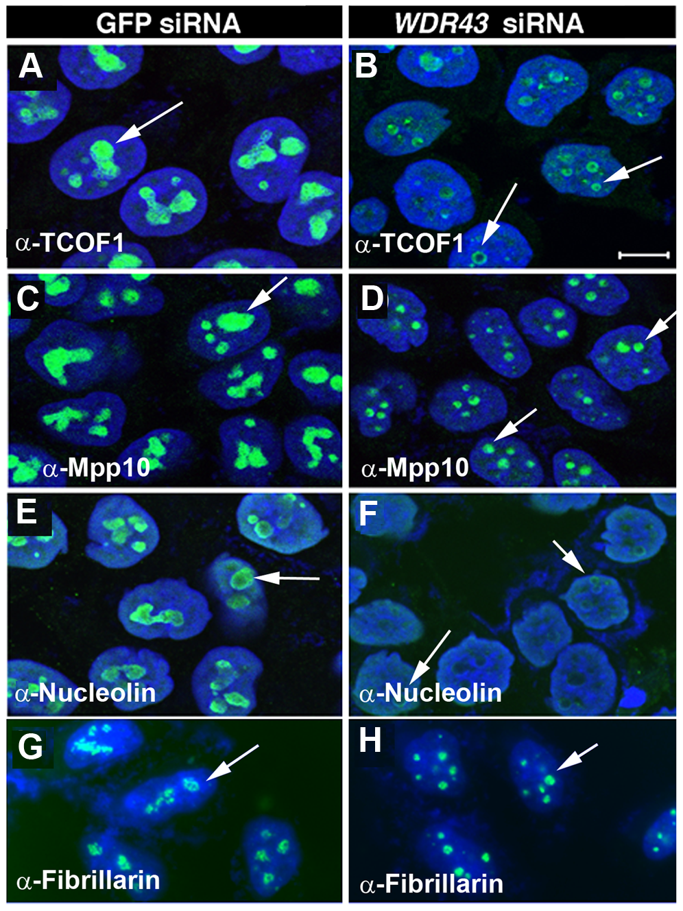 Subcellular localization of nucleolar proteins in WDR43 depleted HeLa cells.