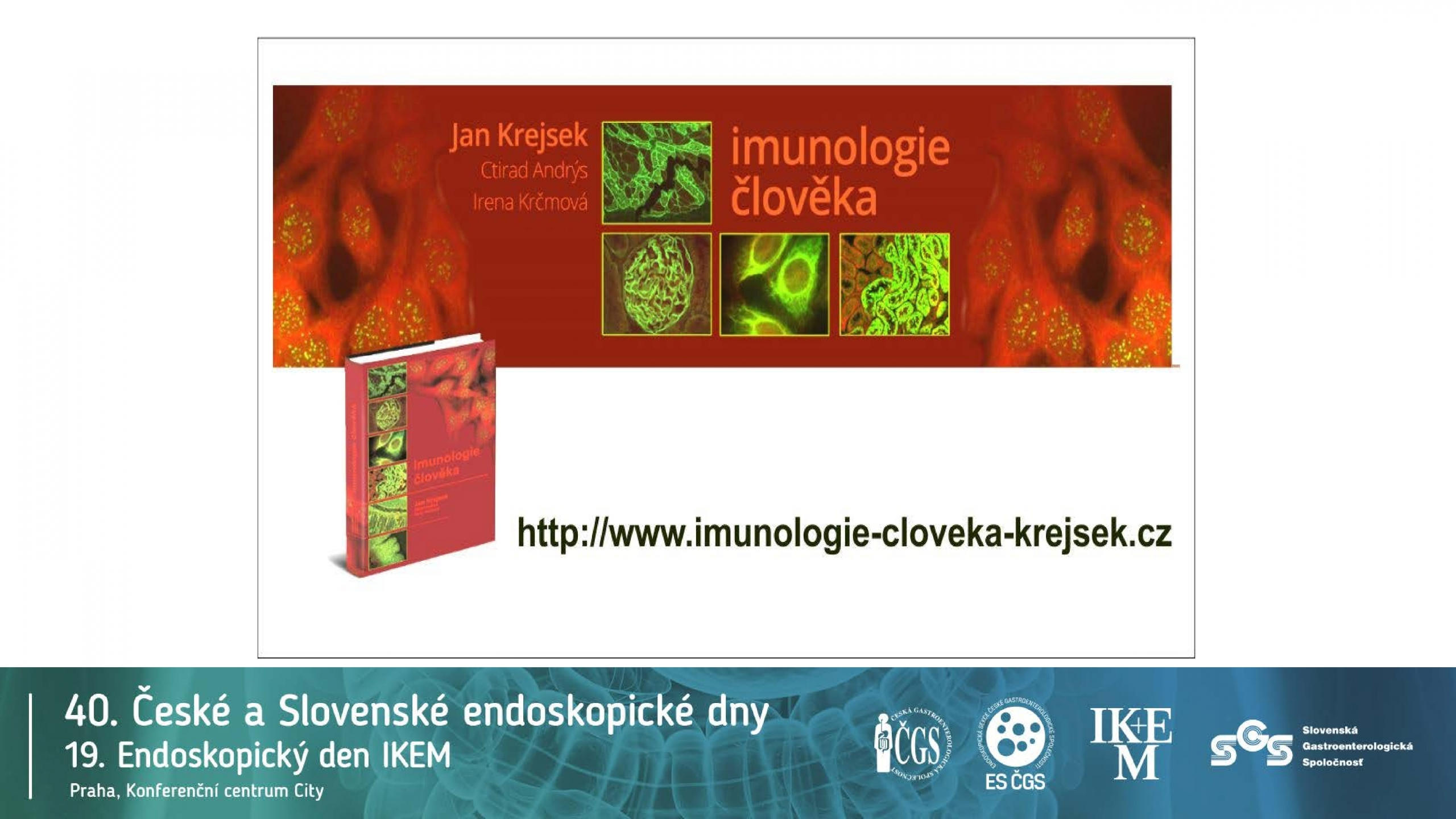 Klíčová úloha IL12/IL23 v patogenezi IBD - 18