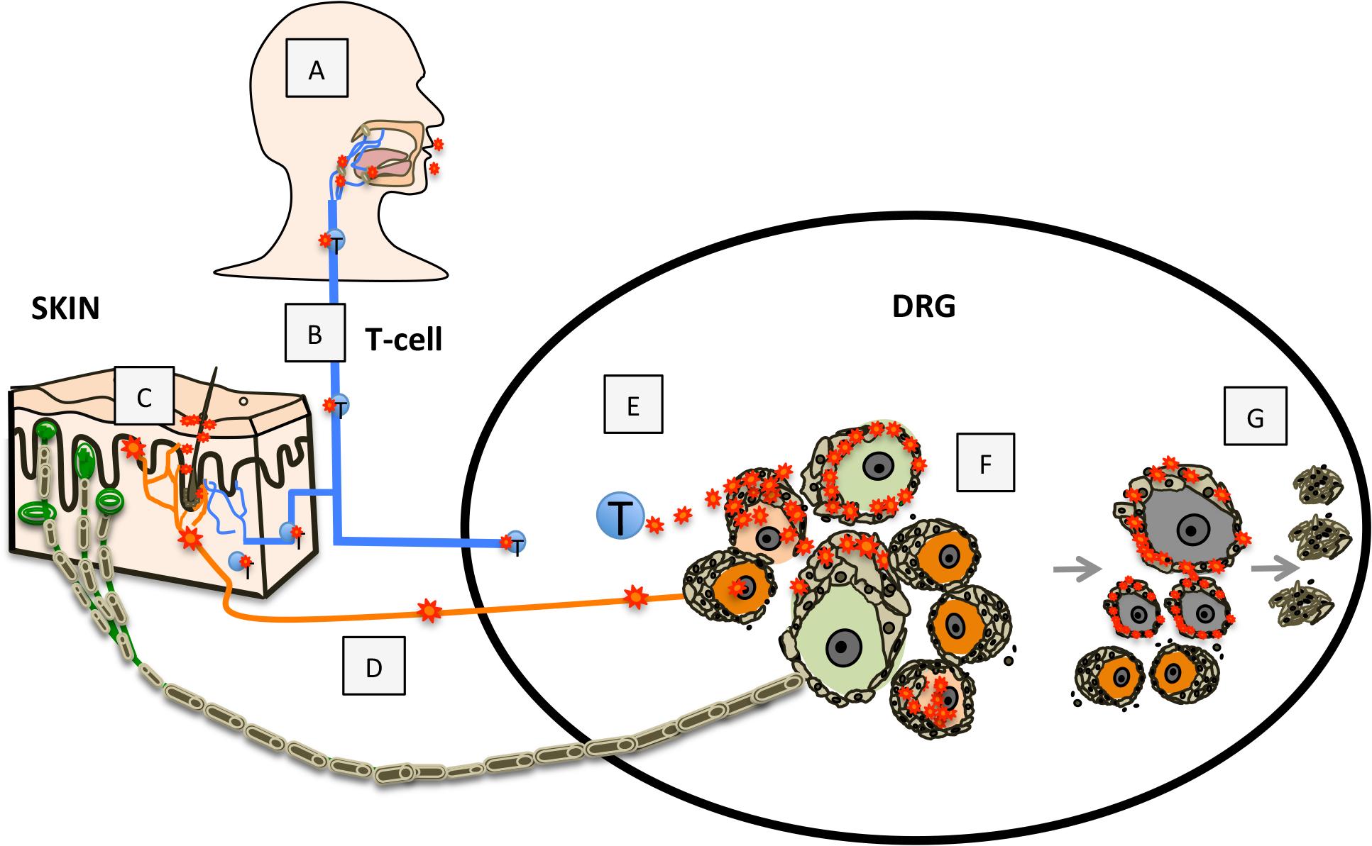 Model for VZV infection of DRG.
