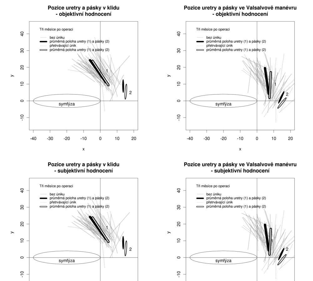 Pozice a pohyblivost uretry a pásky u kontinentních pacientek a u pacientek, u kterých inkontinence moči po operaci přetrvává (podle objektivního a subjektivního hodnocení efektu operace)