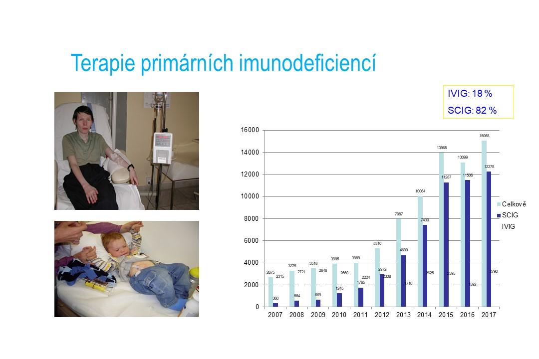 Imunodeficience - 30