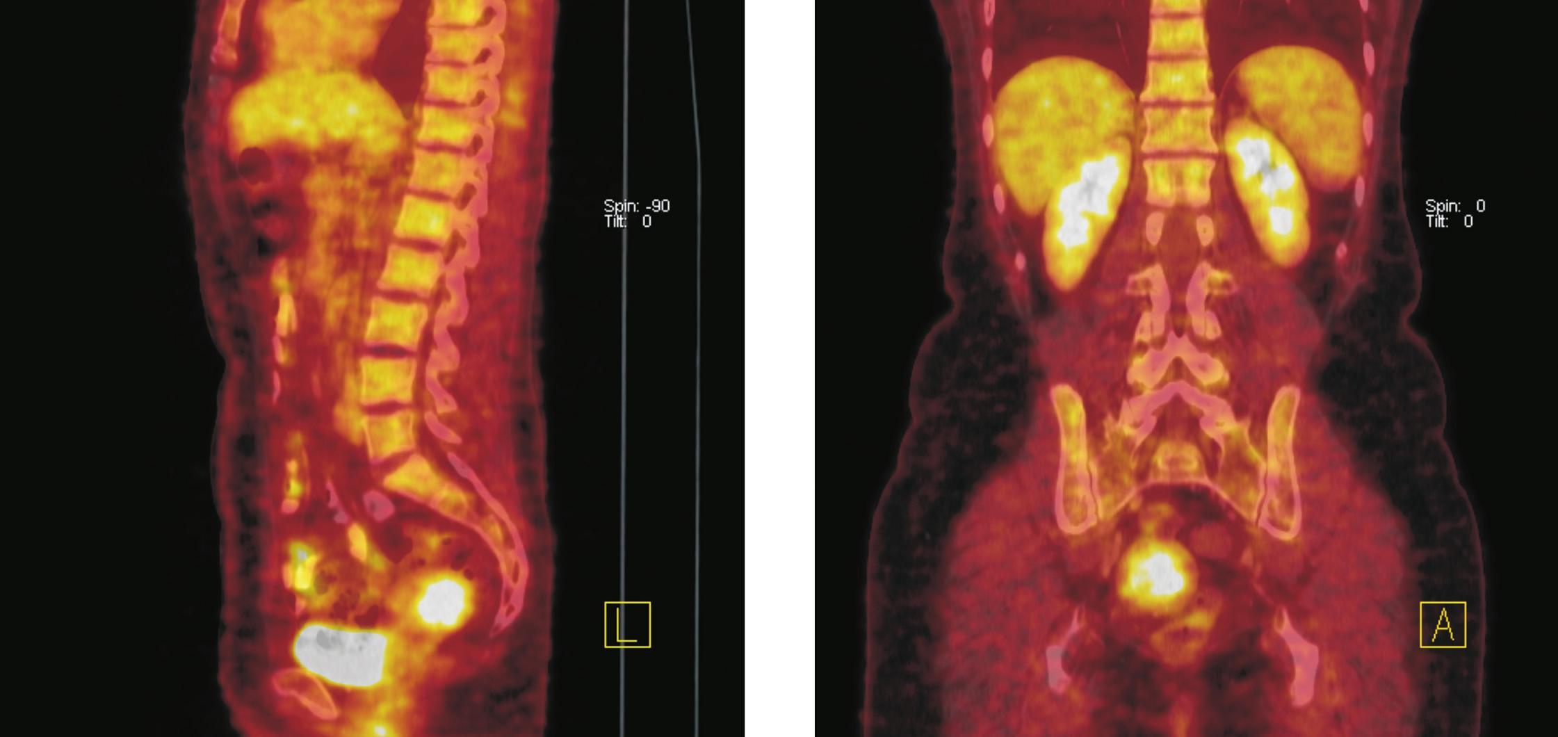 Fúze PET a CT řezů–sagitální rovina (vlevo), koronální rovina (vpravo). Ve fundu dělohy lze na CT diferencovat hyperdenzní formaci o průměru 36 mm se zvýšenou akumulací <sup>18</sup>F-FDG. Po srovnání klinických a ultrazvukových nálezů z posledních 5 let (gynekolog) a vstupního CT vyšetření bylo konstatováno, že se jedná o stacionární leiomyom děložního těla. Kontrolní <sup>18</sup>F-FDG PET/CT vyšetření o rok později potvrdilo neměnnost nálezu.
