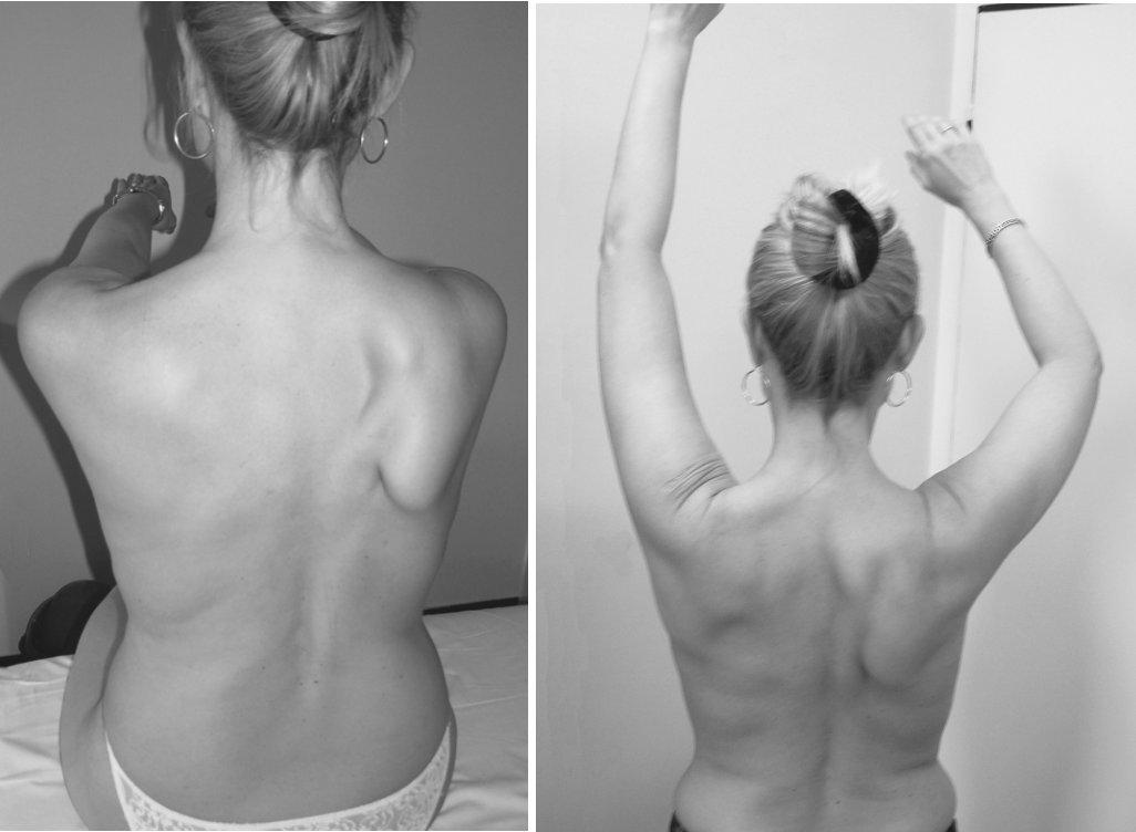 Pacientka K. B., 41 let. Neuralgická amyotrofie brachiálního plexu. Nález jeden měsíc od počátku onemocnění. Je patrná výrazně odstávající lopatka při oslabení m. serratus anterior a paréza PHK.