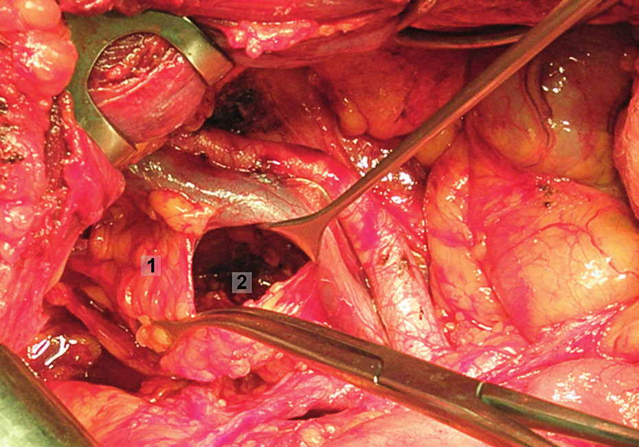 Systematická transperitoneální pánevní lymfadenektomie (pravá pánevní stěna) – čtvrtý krok; mobilizována supraobturatorní skupina lymfatických uzlin, které byly odděleny od fascie m. psoas, zevní ilické cévy jsou odtaženy kraniálně a laterálně. 1 – supraobturatorní uzliny, 2 – obturatorní fosa