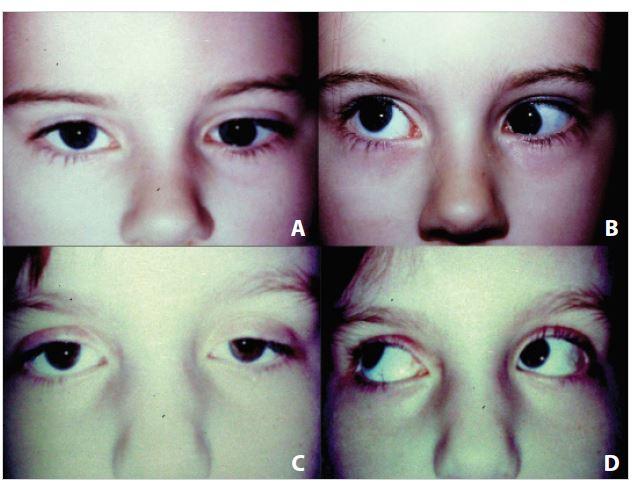 """<b>Léčba expanderem</b>: A – primární hypotropie vlevo ve třech letech, B – syndrom """"cvaknutí"""" v addukci vlevo před operací, C – vyrovnané postavení očí v pěti letech s konsekutivní semiptózou vlevo, D – prakticky vyrovnaná elevace v addukci vlevo"""