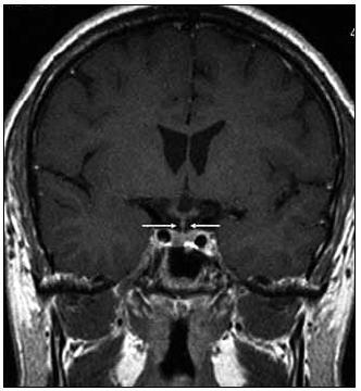 Stejná rovina vyšetření jako na obr. 1, ústup zbytnění stopky hypofýzy po léčbě Langerhansovy histiocytózy, v MR obraze do normy.