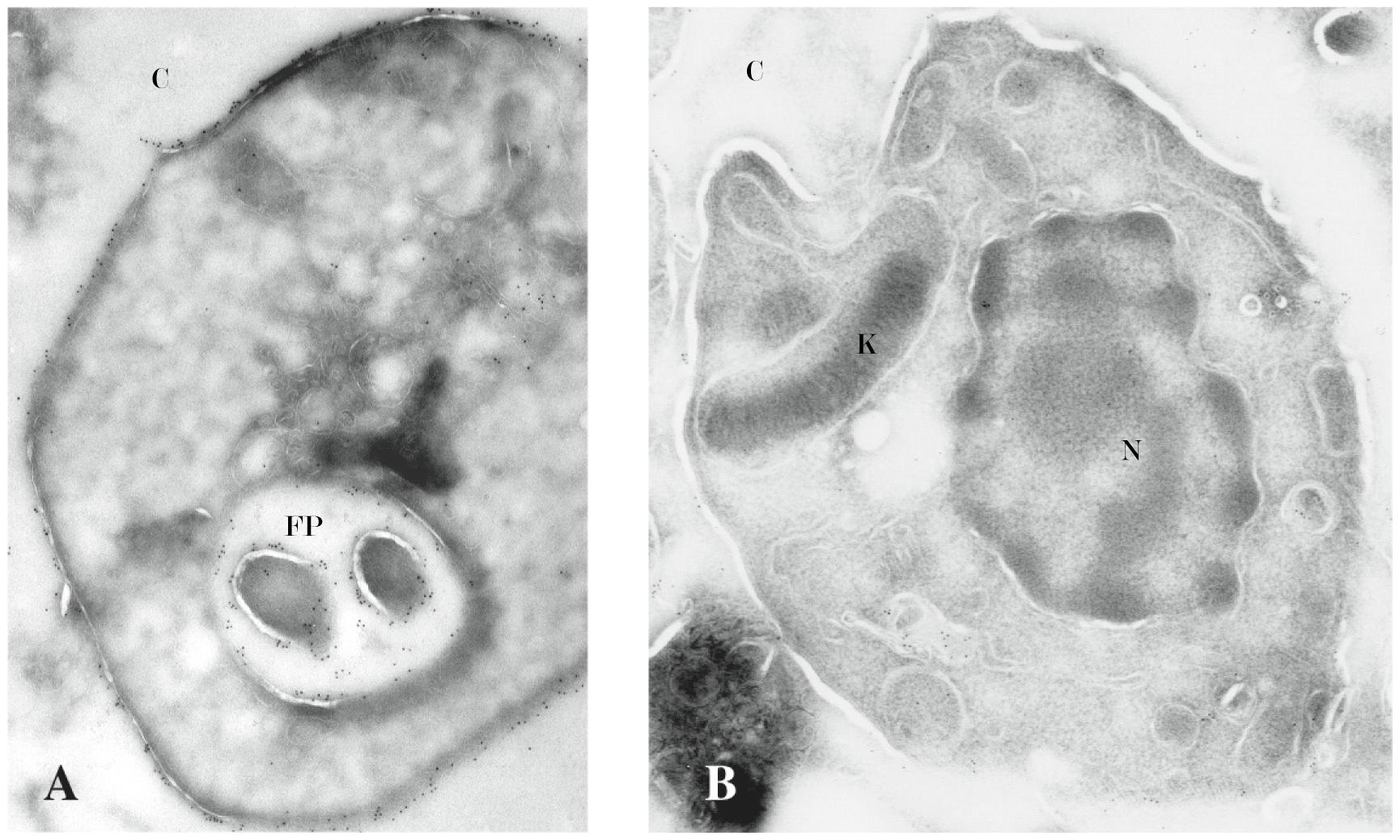 IEM confirms lack of surface-associated cruzain.