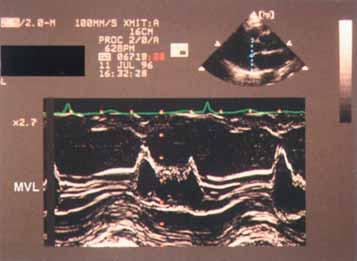 Zvětšený záznam M-modu mitrální chlopně ukazující klasické jemné chvění (flutter) předního cípu sdruženého s aortální regurgitací. Někdy je vidět na septálním endokardu v závislosti na směru jetu.