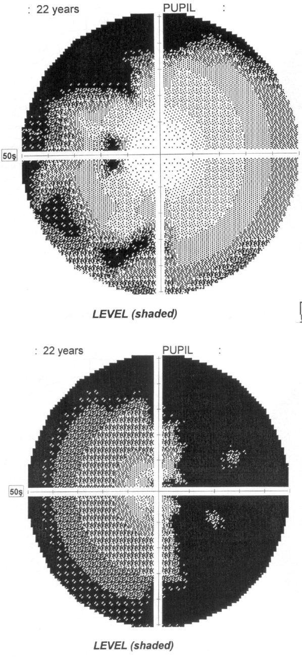 Nález z vyšetrenia počítačovým perimetrom u pacientky č. 1 (a) – ľavé oko, b) – pravé oko)