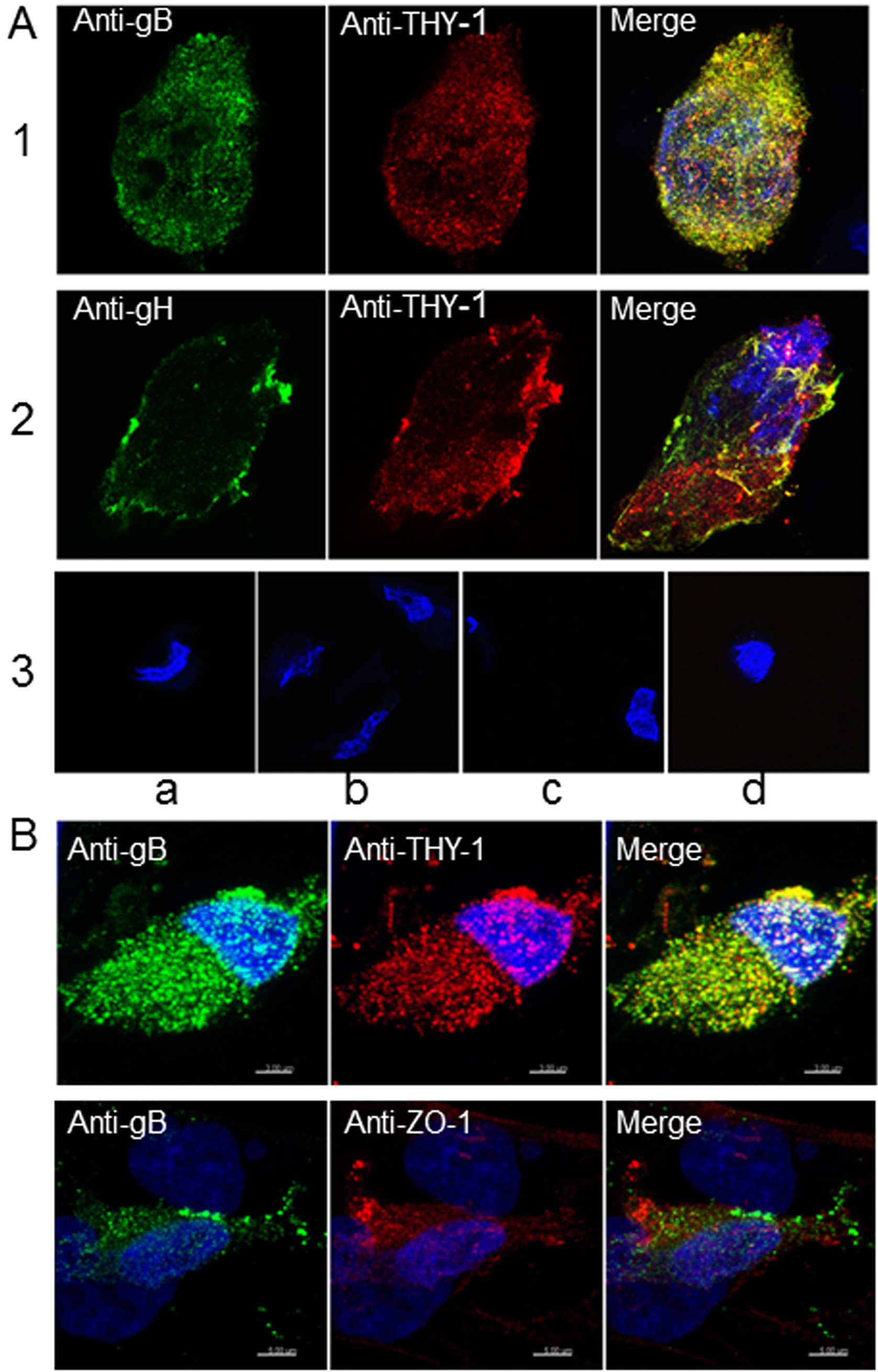 Colocalization of THY-1 with HCMV gB and gH from virus-infected cells by confocal microscopy.