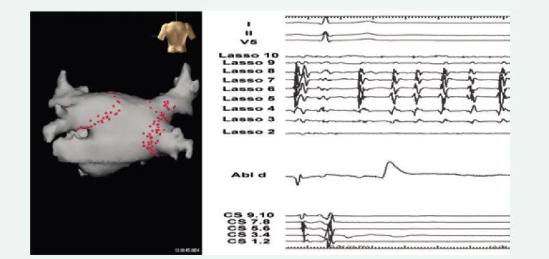 Ukázka elektroanatomické mapy levé síně se schématem lézí, které vedly k izolaci plicních žil u nemocného s paroxyzmální fibrilací síní (levý panel, pohled zezadu).