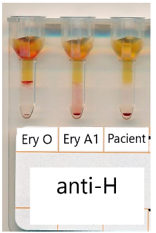 Typování antigenu H v gelové kartě BioRad