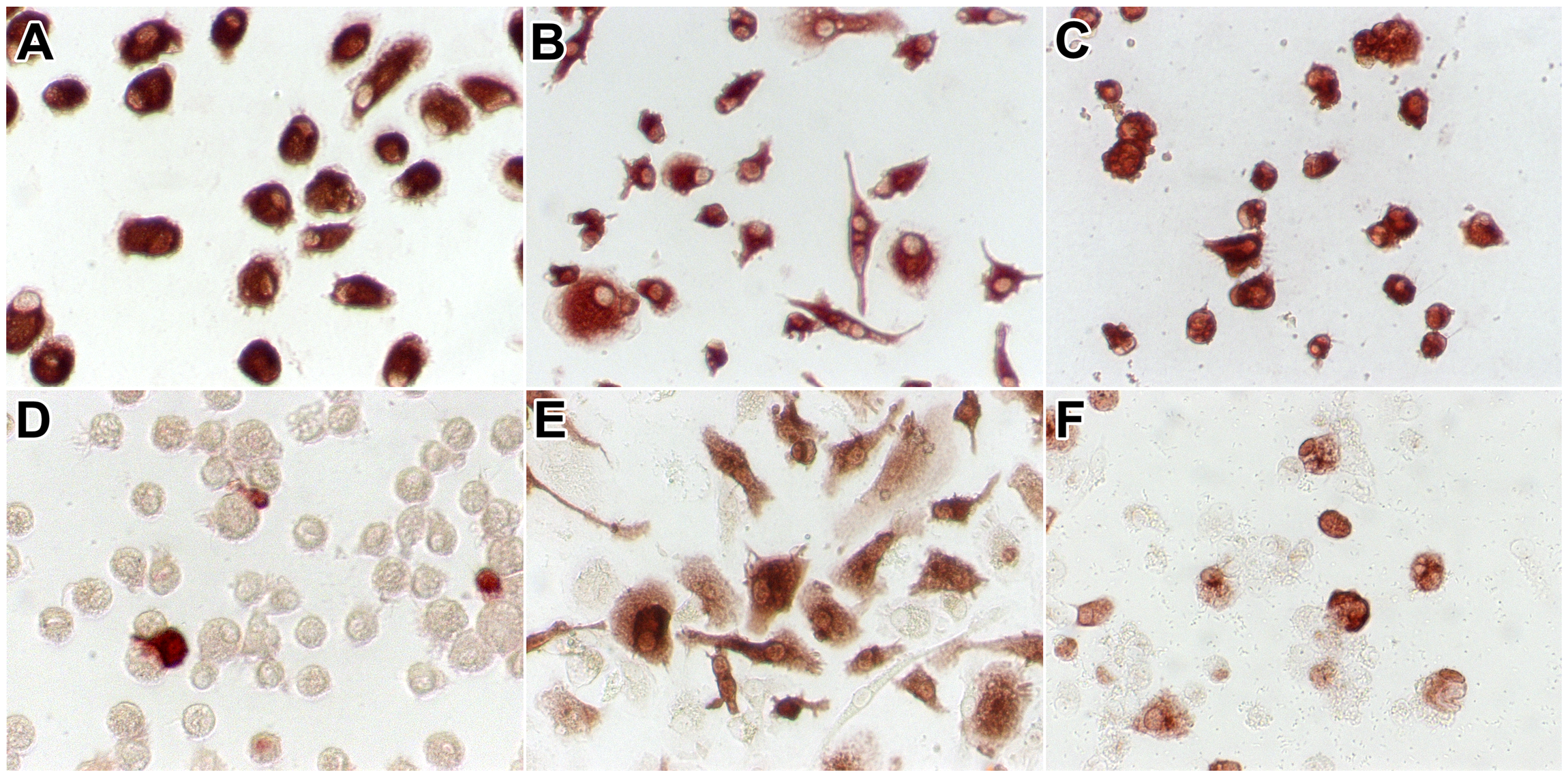 CD68 and influenza A virus antigen expression in alveolar macrophages and macrophages cultured from monocytes.