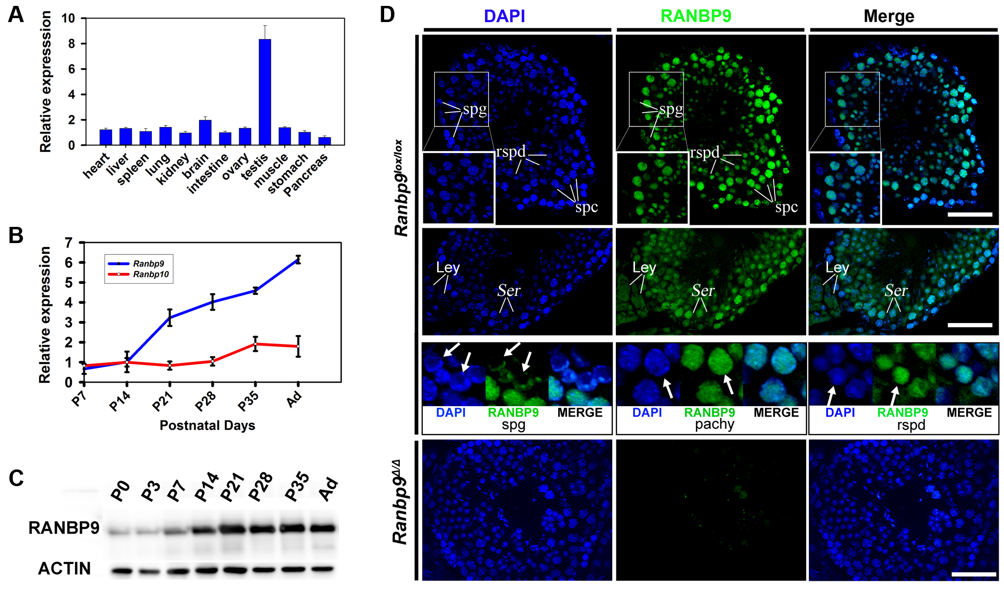 Expression profiles of <i>Ranbp9</i> during testicular development and spermatogenesis in mice.