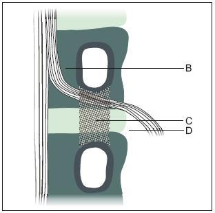 Obr. 2b. Topografie laterální stenózy – frontální aspekt. B: stenóza laterálního recesu, C: stenóza kořenového kanálu, D: stenóza extraforaminální.