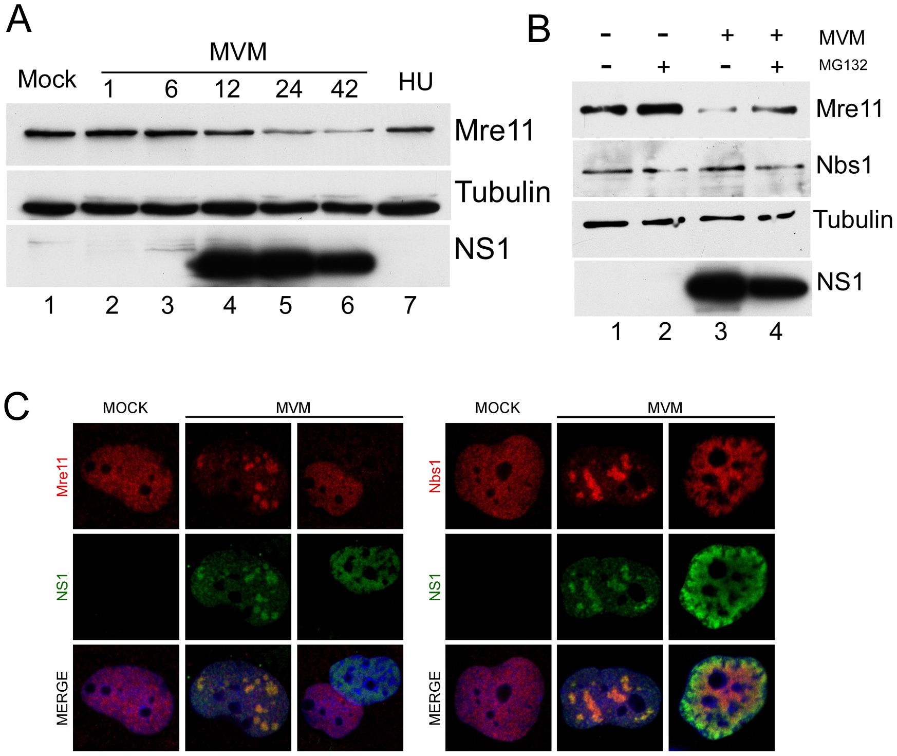Mre11 but not Nbs1 is degraded in MVM-infected cells.