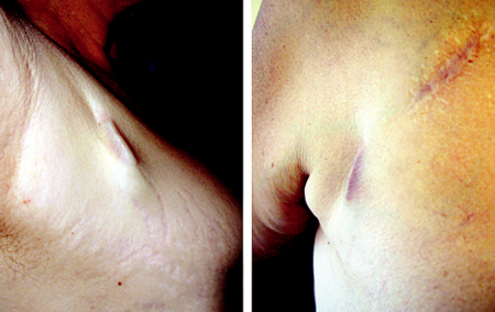 Počínající dekubitus kapsy kardiostimulátoru