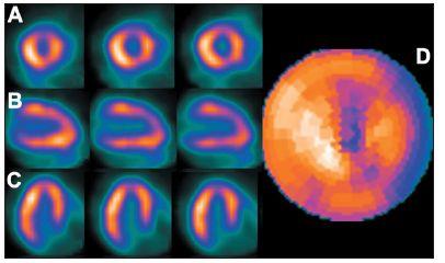Vybrané tomografické řezy (A – SA, B – VLA, C – HLA) a polární mapa (D) pacienta s dextrokardií (snímáno přes pravý bok) – zřetelné je změněné rozložení radioaktivity, jiná poloha boční stěny a septa. Rovněž kvantitativní analýza neodpovídá realitě – tato studie je porovnávána s běžnou normálovou databází.