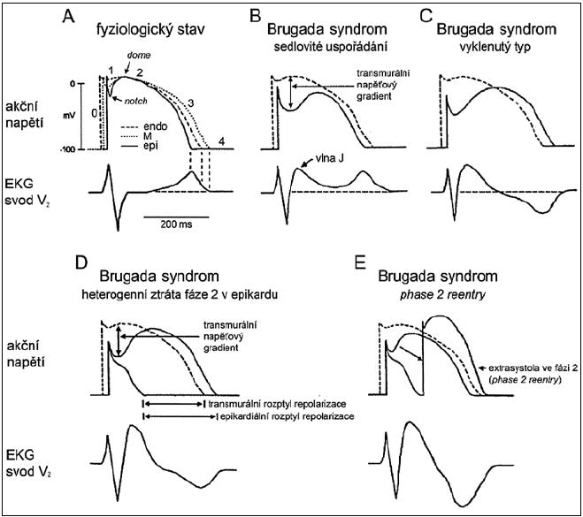 Změny konfigurace akčního napětí v epikardu pravé komory vysvětlující vznik typického uspořádání EKG křivky a arytmogenního substrátu u Brugada syndromu na základě tzv. repolarizační hypotézy. Vysvětlení v textu. 0 až 4 – fáze akčního napětí, endo – endokardiální srdeční buňky, M – srdeční buňky v tzv. M-oblasti, epi – epikardiální srdeční buňky. S dovolením převzato a upraveno z citace [29].