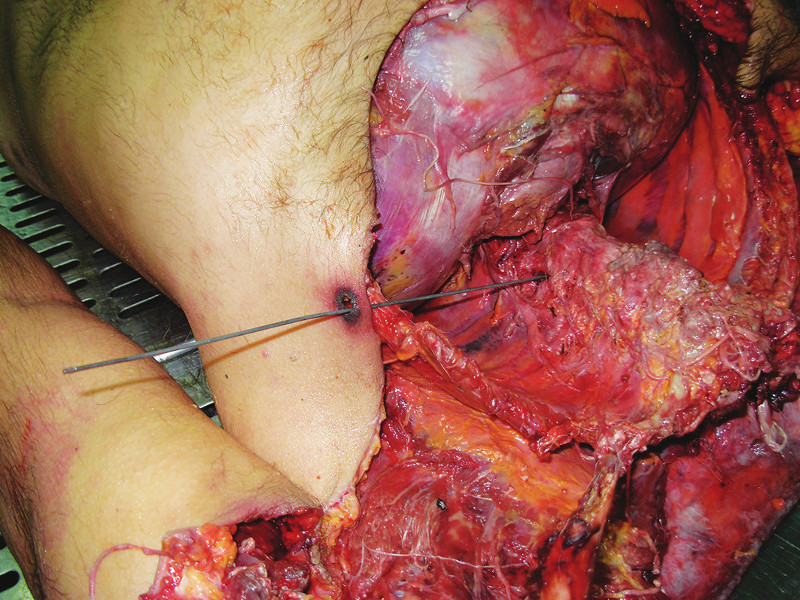 Figure 4. The bullet reached the tissue of the right paravertebral muscle behind eighth dorsal vertebra.