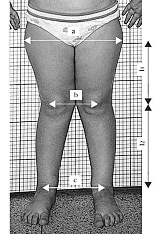 Antropometrická metoda měření T-F úhlu podle Čulíka a Maříka (2002).