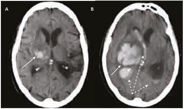 Intracerebrální krvácení u warfarinizovaného pacienta (INR 4,5). a) Nevelké krvácení v centrálních strukturách pravé mozkové hemisféry (šipka). CT vyšetření 2 hod po příhodě. b) Výrazná progrese velikosti hematomu (šipka) a provalení krve do komorového systému (přerušované šipky) v důsledku navozené perzistentní koagulopatie. Kontrolní CT vyšetření s odstupem 4 hod.