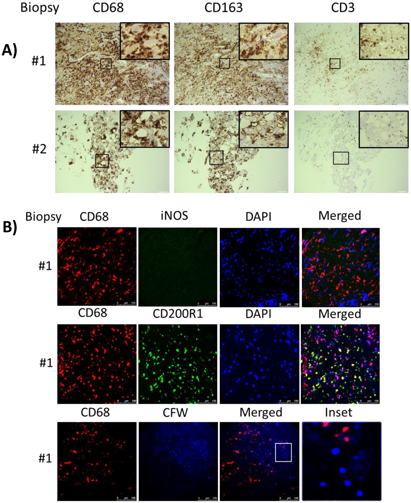 Brain biopsy specimens from patients with s-CNS cryptococcosis demonstrate macrophage and T-cell tissue infiltration.