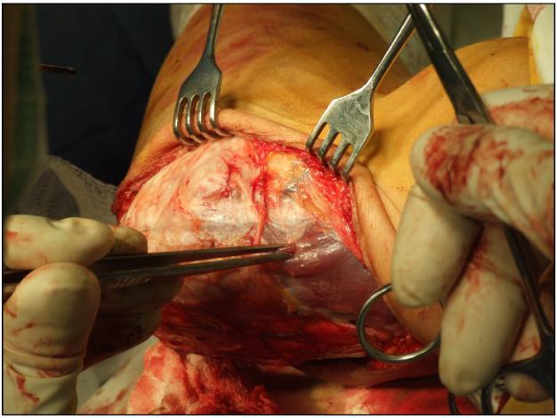 Obr. 6b: Preparace tkání ulnárně před deliberací ulno-humerálního skloubení
