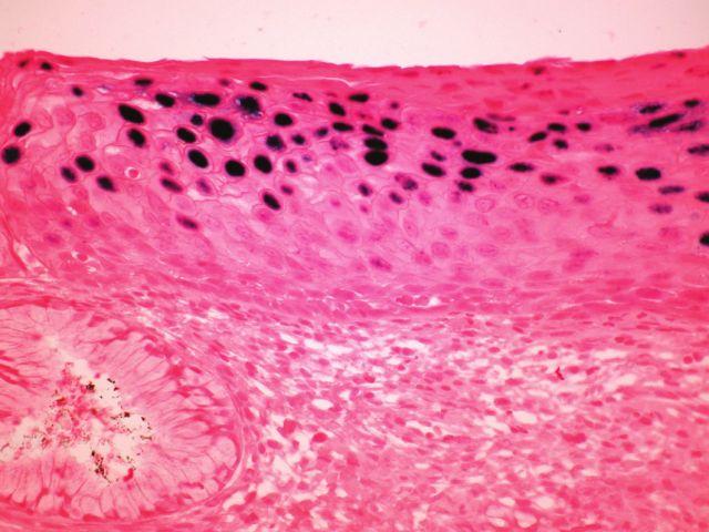 <i>In situ hybridizace</i> (ISH – epizomální typ barvení) u cervikální léze, kde v horních vrstvách dlaždicového epitelu jsou sytě modře difúzně zbarvená jádra svědčící pro DNA HPV v epizomální podobě (INFORM HPV III Family 16 Probe, zvětšení 100x).