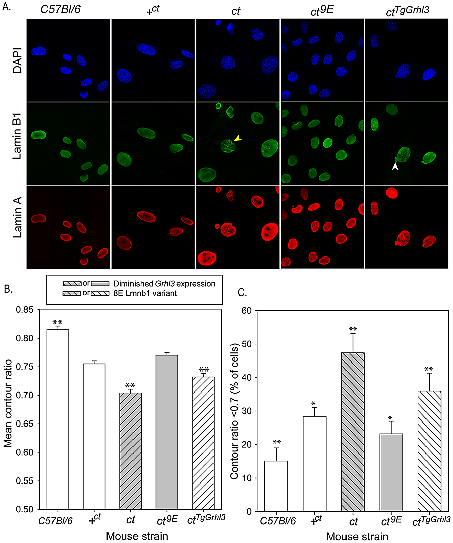 Nuclear morphology is influenced by Lamin B1 variation.
