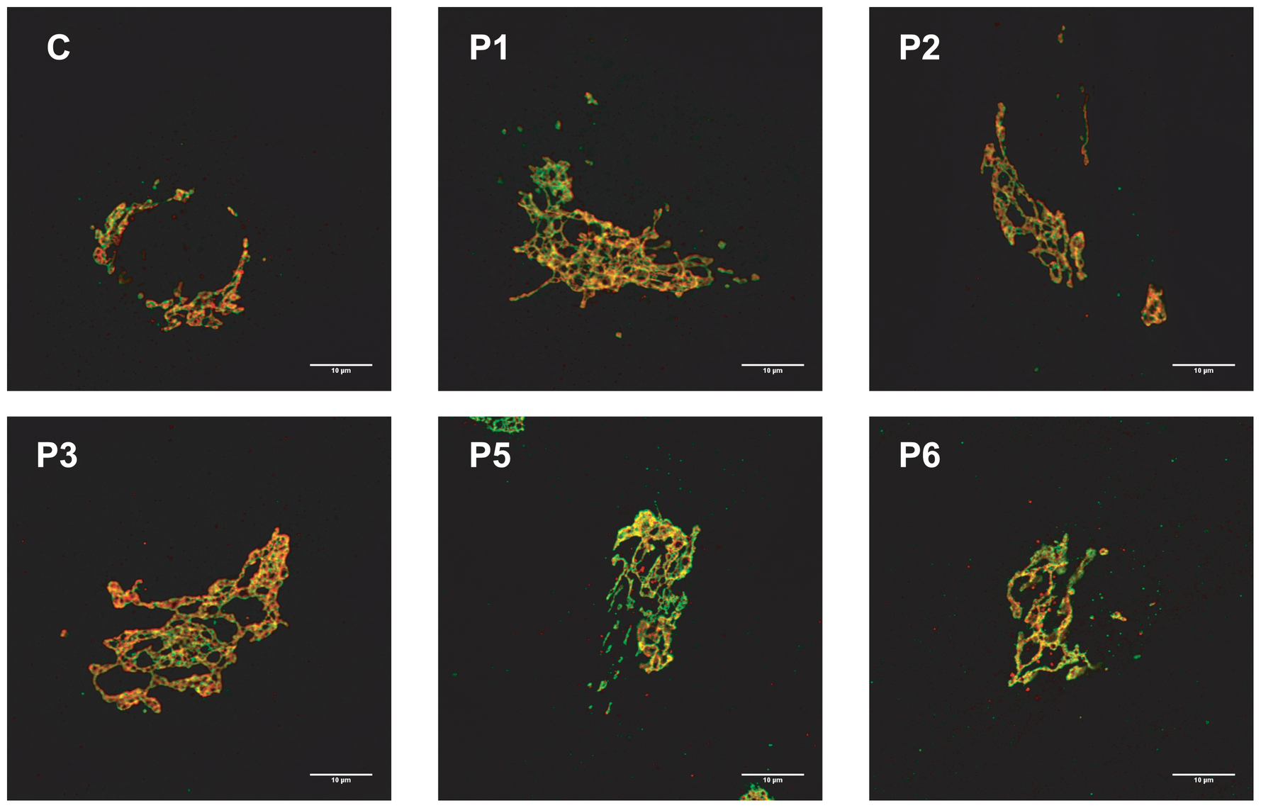 MAN1B1-deficient fibroblasts present alterations in Golgi structure.
