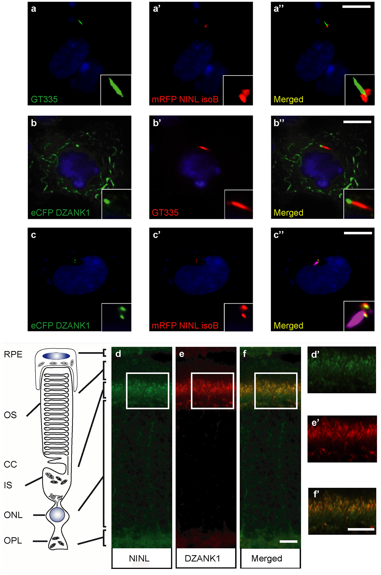 NINL and DZANK1 co-localize at the base of cilia in RPE cells and rat retina.
