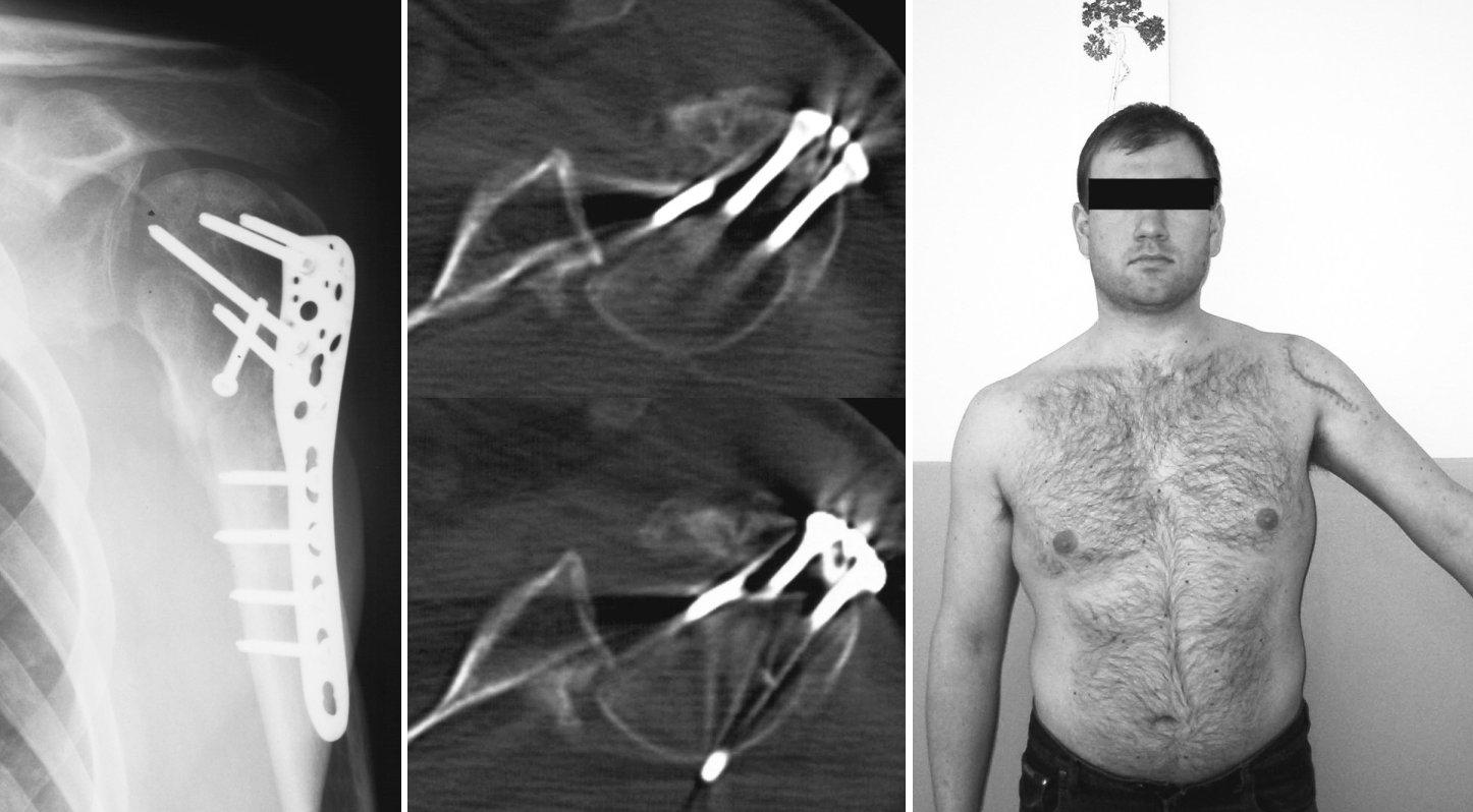 Nepoznaná zadní luxace po osteosyntéze kominutivní zlomeniny proximálního humeru – a) RTG snímek 3M po osteosyntéze, b) CT-nález zadní luxace, c) klinický nález Pic. 4. Undiagnosed posterior dislocation following osteosynthesis of the proximal humerus comminutive fracture – a) a 3M x-ray view following osteosynthesis, b) a CT finding of posterior dislocation, c) a clinical finding