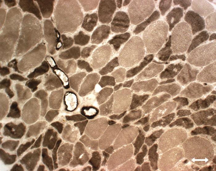 Atrofie vláken typu II (myosinová ATP-áza, tmavá vlákna typu 2, světlá vlákna typu 1).