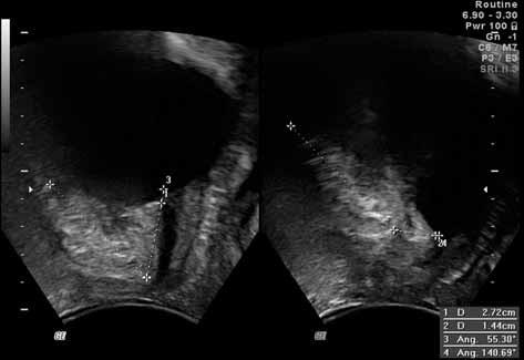 Obr. 2b. UZ měření úhlu gama a přímky p u pacientky s hypermobilní uretrou; obrázek vlevo – v klidu (úhel gama 55 ° a přímka p 27 mm), obrázek vpravo - při maximálním Valsalvově manévru (úhel gama 140°, přímka p 14 mm)