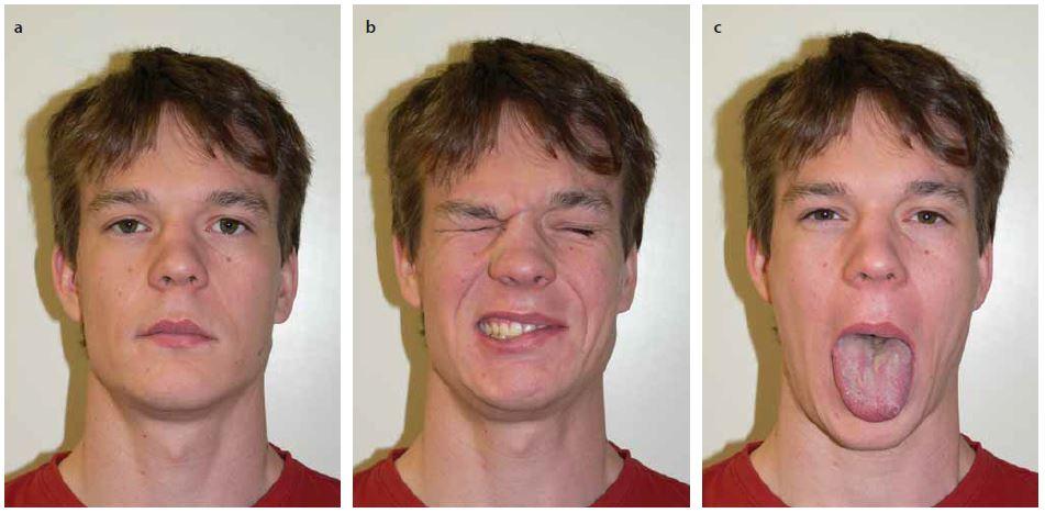 Pacient 4,5 roku po hemihypoglossofaciální anastomóze vlevo.