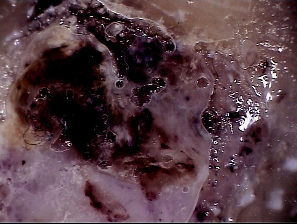 Dermatoskopický obraz akrolentiginózního melanomu.