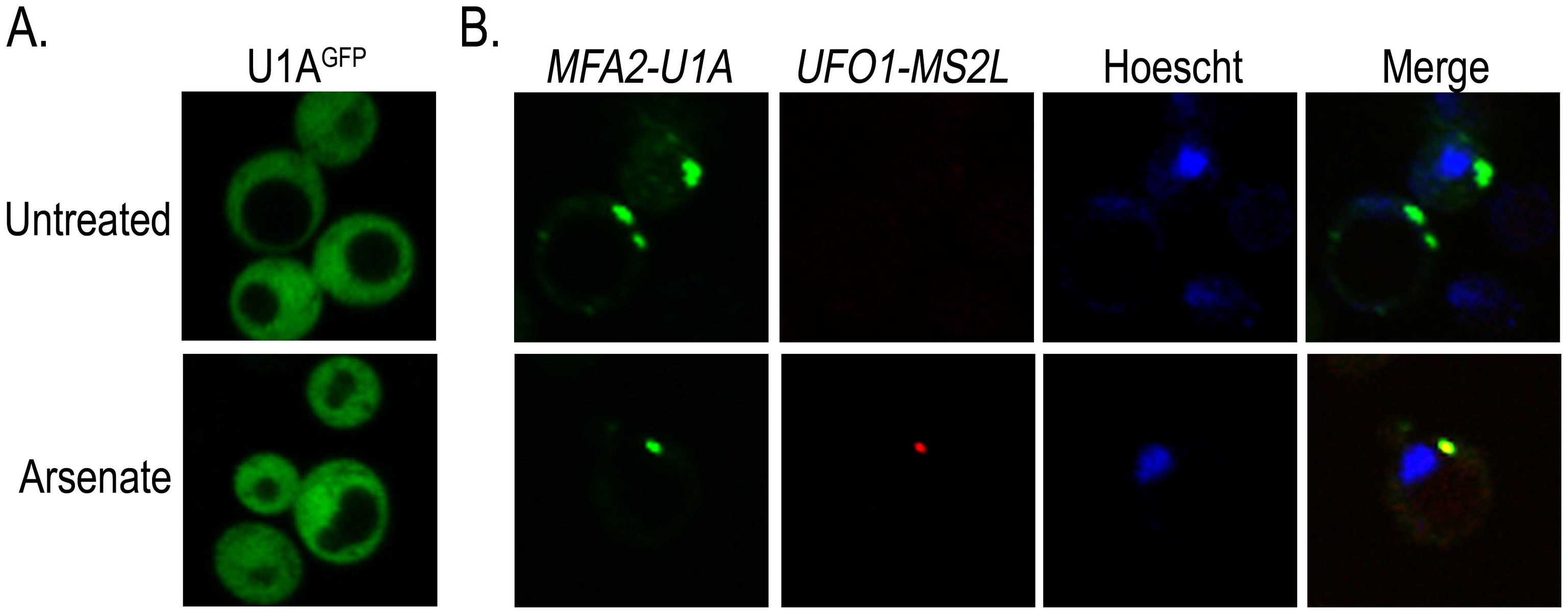 <i>UFO1-MS2L</i> and <i>MFA2-U1A</i> mRNAs are sequestered in the same PBs after arsenate stress.