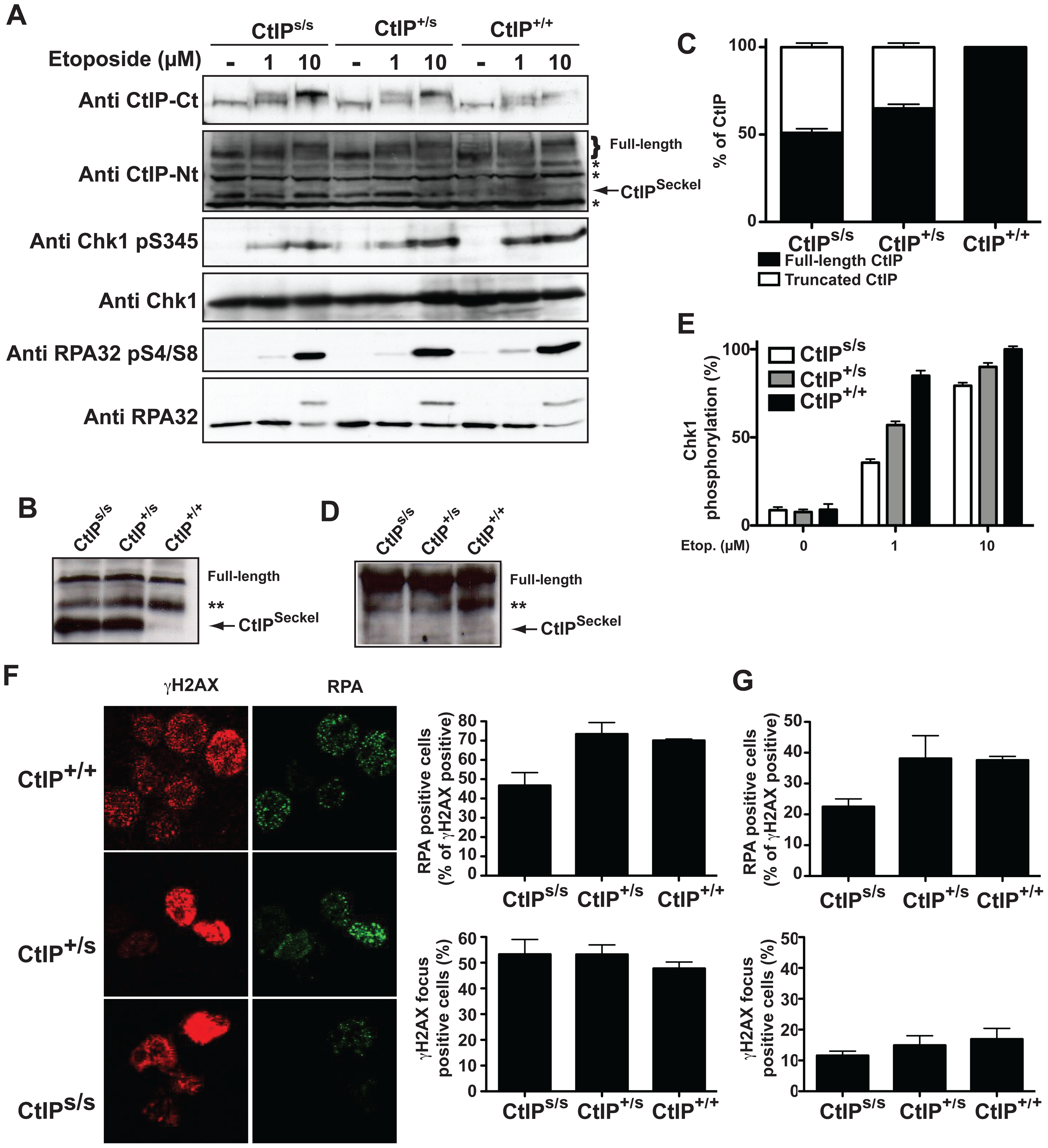 SCKL2 cells express a shorter version of CtIP and are mildly defective in RPA-coated ssDNA formation and ATR activation.