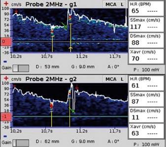 Dva mikroemboly. Žluté šipky označují dva za sebou se vyskytující mikroembolické signály (snímek pořízen během vyšetření pravo-levého zkratu pomocí směsi fyziologického roztoku a vzduchu).