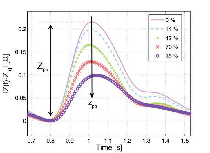 Fig. 4: Simulated offset-corrected impedance curves of the thorax as a function of different filling stages of the lung.