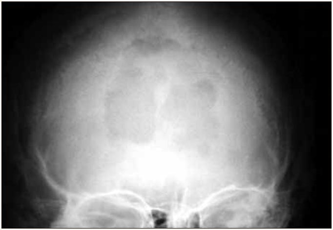 Osteolytické ložisko lebky na předozadním RTG snímku.