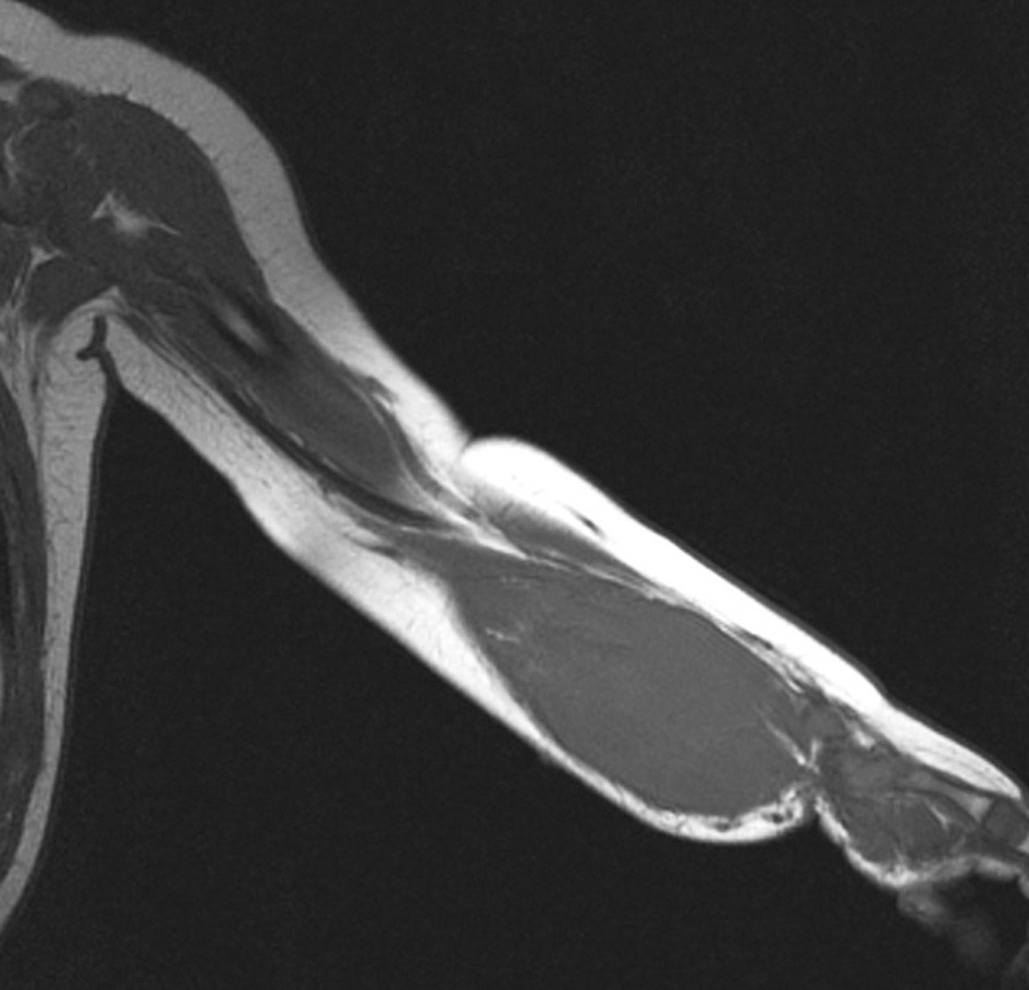 Fig. 1. MRI scan of the left upper extremity